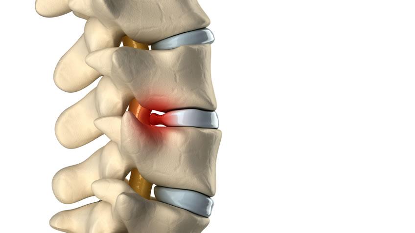 Diferencia entre hernia discal y protusión